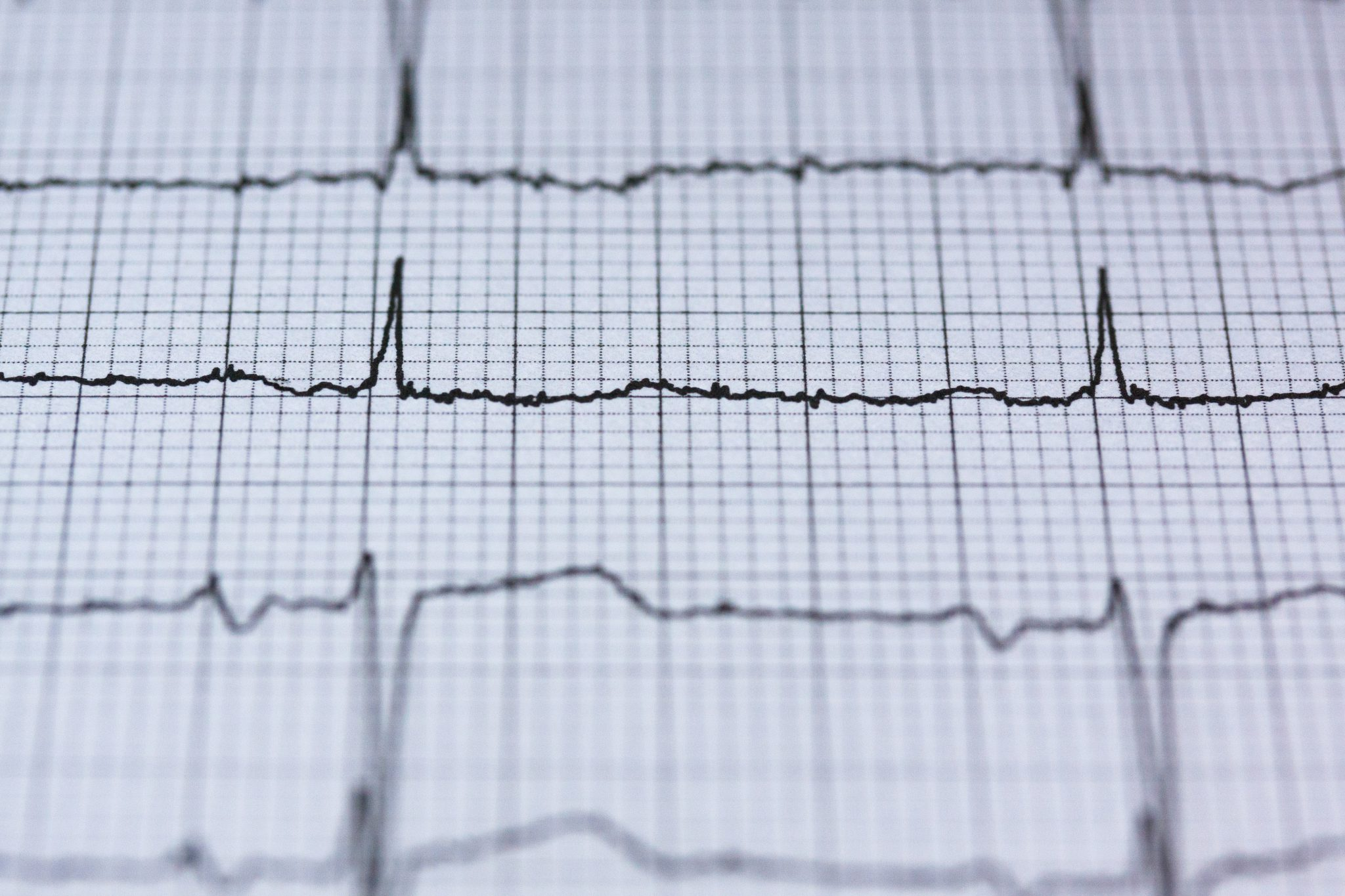 An ECG is an electrical recording of your heart