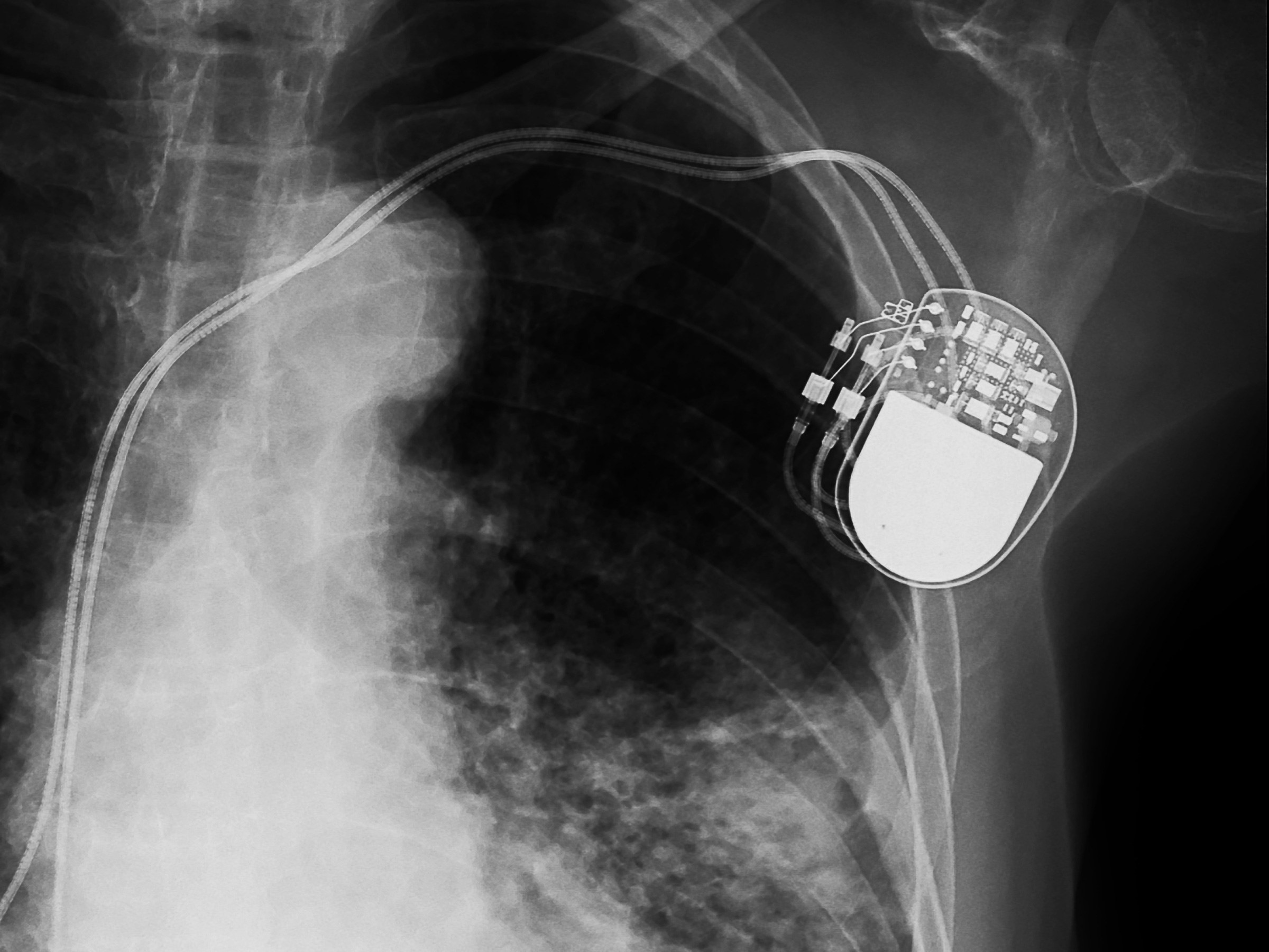 Dr. Levine runs a pacemaker clinic once per month